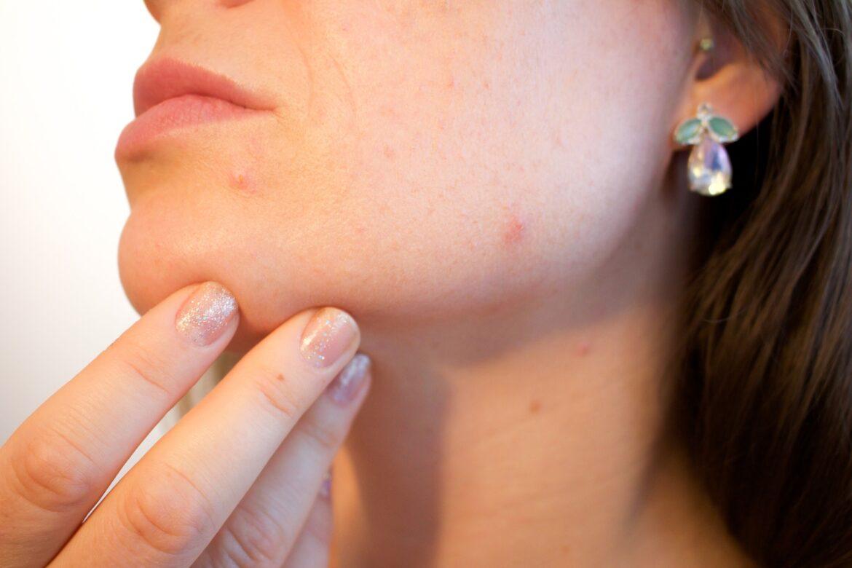 Trądzik kosmetyczny - czym różni się od pospolitego i jak się go pozbyć?
